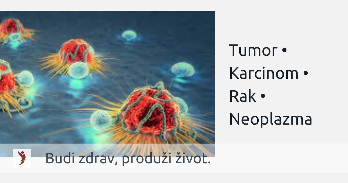 Tumor Karcinom Rak Neoplazma; Photo: https://www.cancerhealth.com/article/t-cell-therapy-shows-promise-melanoma-cervical-cancer