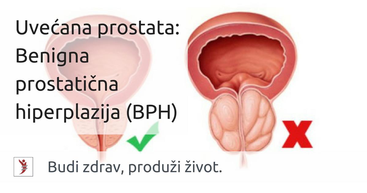liječenje uvećane prostata